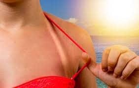 Hidrosol de lavanda pentru arsuri solare
